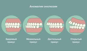Прикус зубов и его влияние на организм. Исправление.
